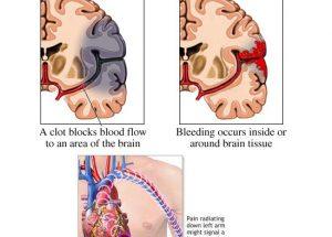 时事评论 :认识中风与心脏病的风险