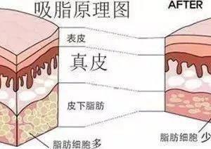 久病成太医(二):酒精可《溶化》皮肤内的硬块 ?
