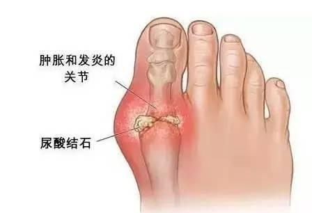 久病成太医(一):痛风外敷疗法