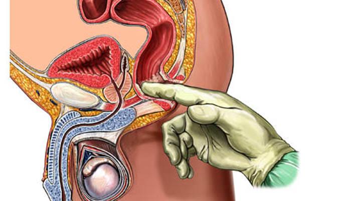 男性生理探討:前列腺的《机制》